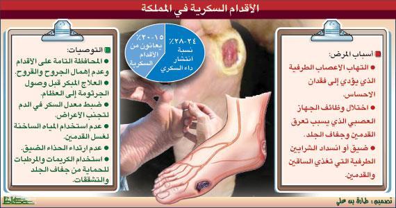 e50522884 كرسي الشيخ محمد حسين العمودي لأبحاث القدم السكرية | أرشيف الأخبار